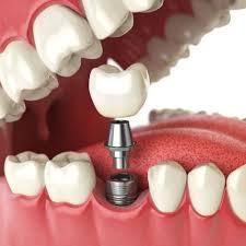 Зачем ходить к стоматологу